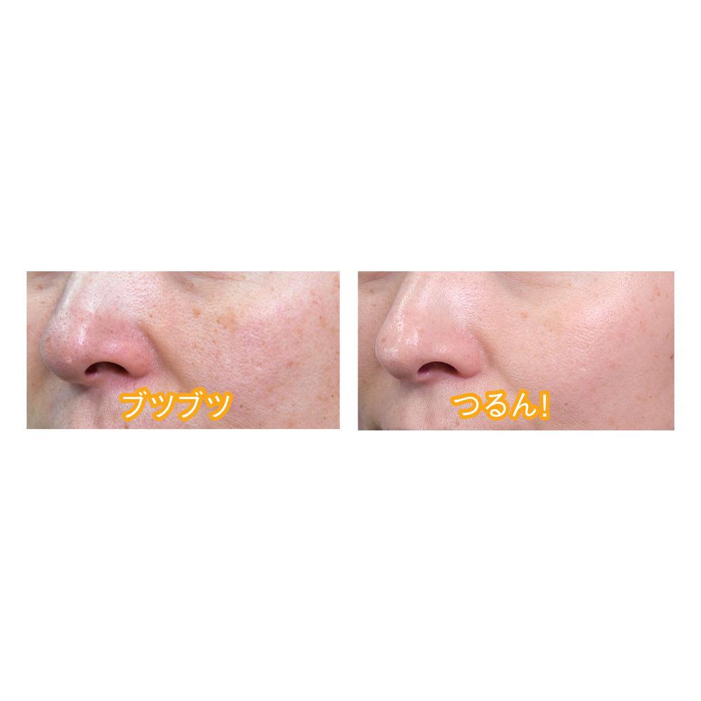 スプラコール ハニカムスポンジ フェイス用2色セット 気になる小鼻のブツブツも、毎日お手入れを続けることでつるんときれいに。(メーカー調べ)
