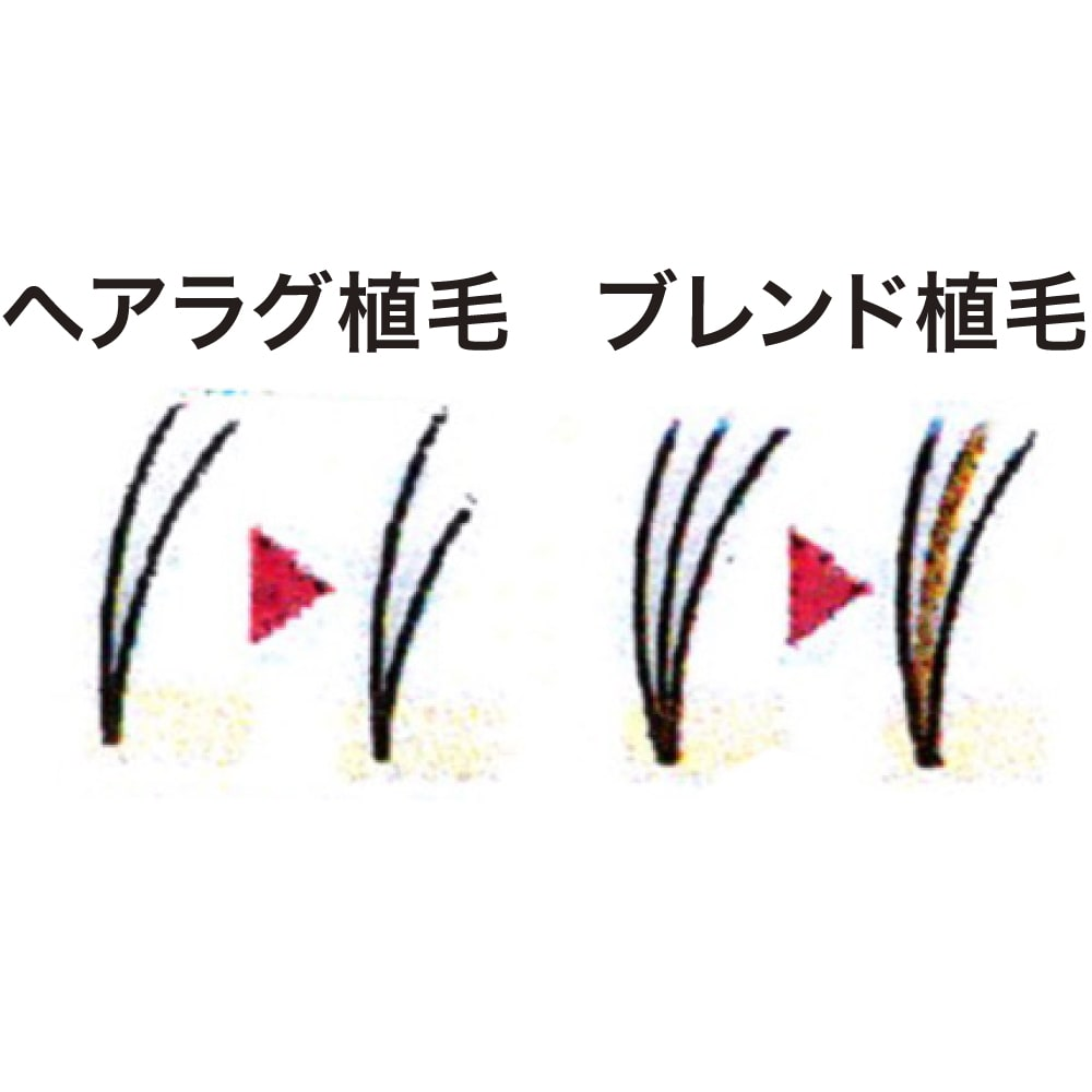エブリワンフィット ヘアピース ミックス 毛髪の長さを少しずつズラして植える「ヘアラグ植毛」と色が微妙に異なる毛髪を混ぜる「ブレンド植毛」。この2つで自然に見えるように仕上げています。 ※植毛イメージ