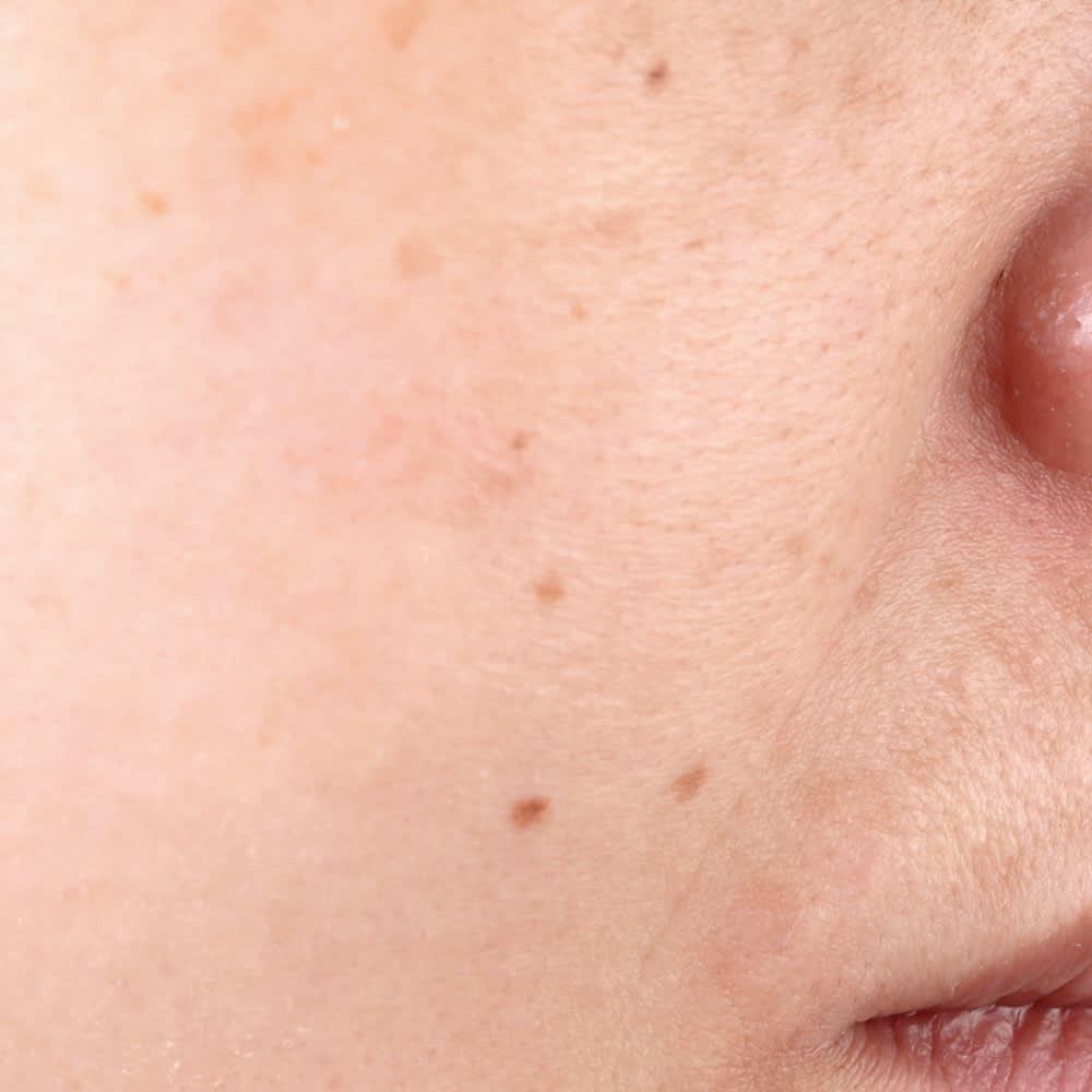 Luxer/ラクサー 薬用シワ改善シリーズ 薬用シワ改善クリーム 30g シワがない肌 ※効果には個人差があります。