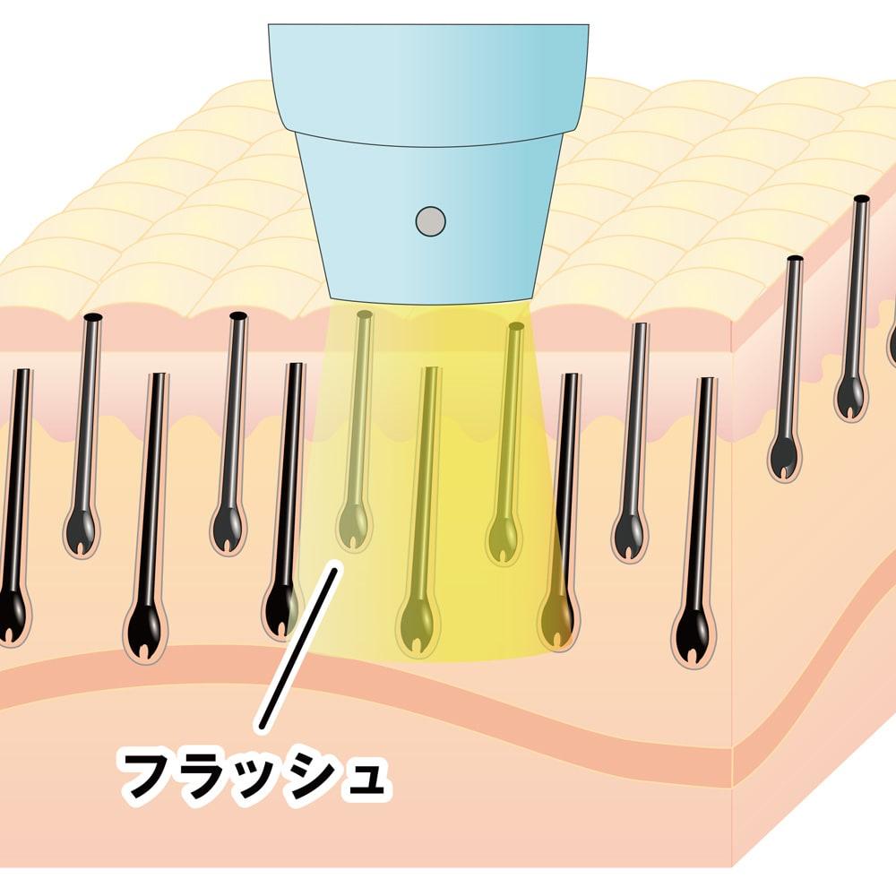 ワイドラッシュアクセラーションRF 異なる特性をもつ光エネルギーとラジオ波の相乗的な働きを実現。 メーカー従来品 フラッシュのみ
