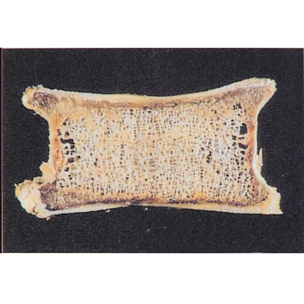 ユニカルカルシウム 顆粒タイプ 60包 正常な骨 骨はカルシウムの貯蔵庫です。食事できちんとカルシウムが摂れていたら、骨に貯蔵され、密度のギュッと詰まった硬い骨になります。