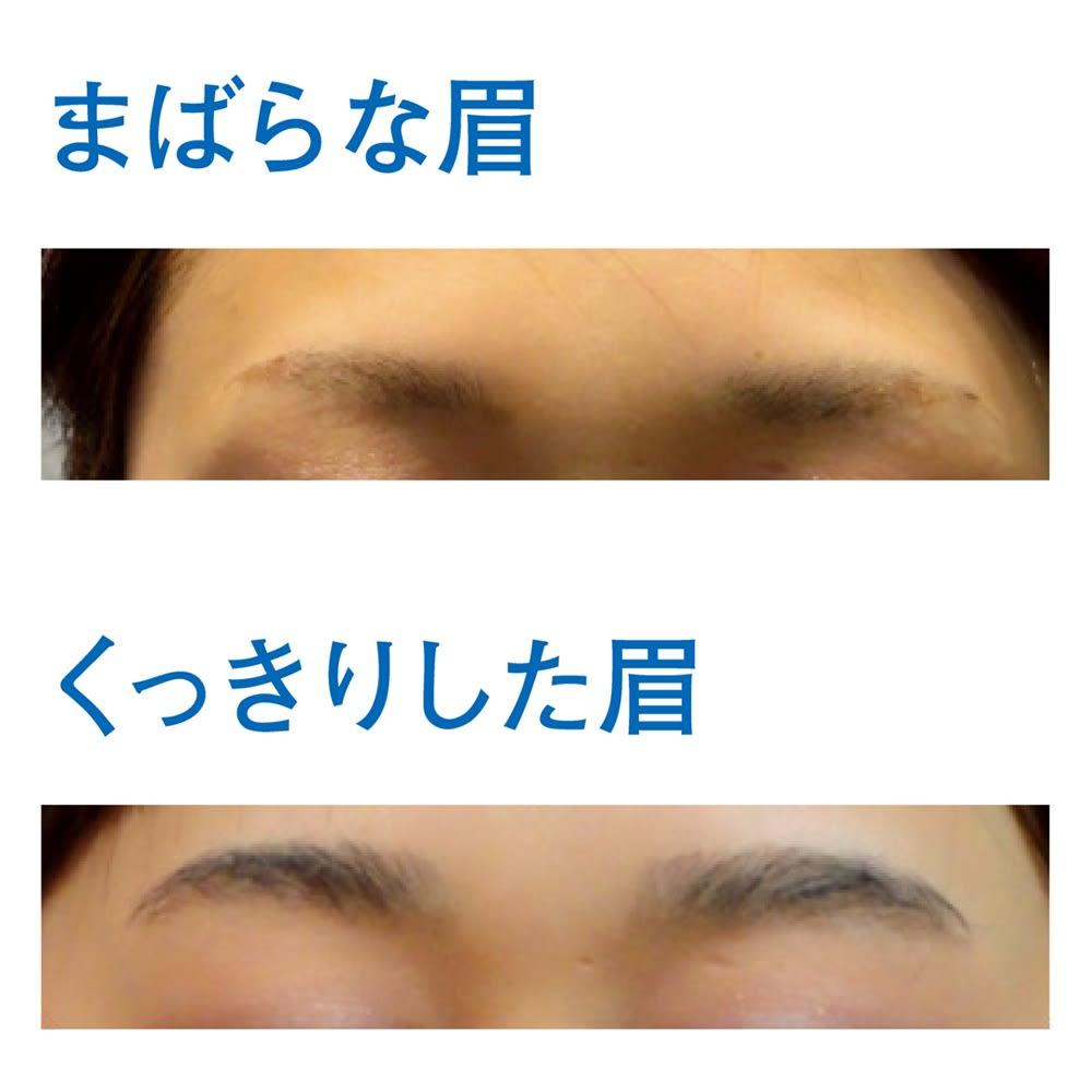 リューヴィ薬用育毛エッセンス 4ml 【お得な2本組】