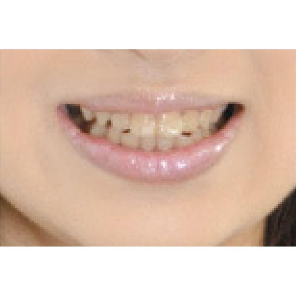ハニック コートローズ 5.5ml 2個組 【使用前】黄ばみが気になる歯も…。