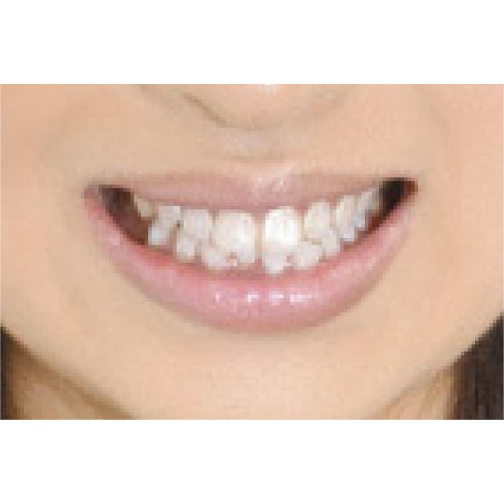 ハニック コートローズ 5.5ml 2個組 【使用中】輝くような真っ白な歯に。着色汚れを防ぐ働きも。 (※仕上がりには個人差があります。)