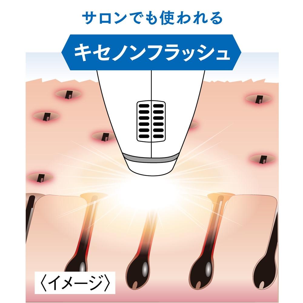 光美容器 クールフラッシュボーテ(ムダ毛ケア美容器) 黒色に反応して熱を発生させる「キセノンフラッシュ」。ムダ毛に熱を加えてダメージを与え、ツルスベ美肌に。