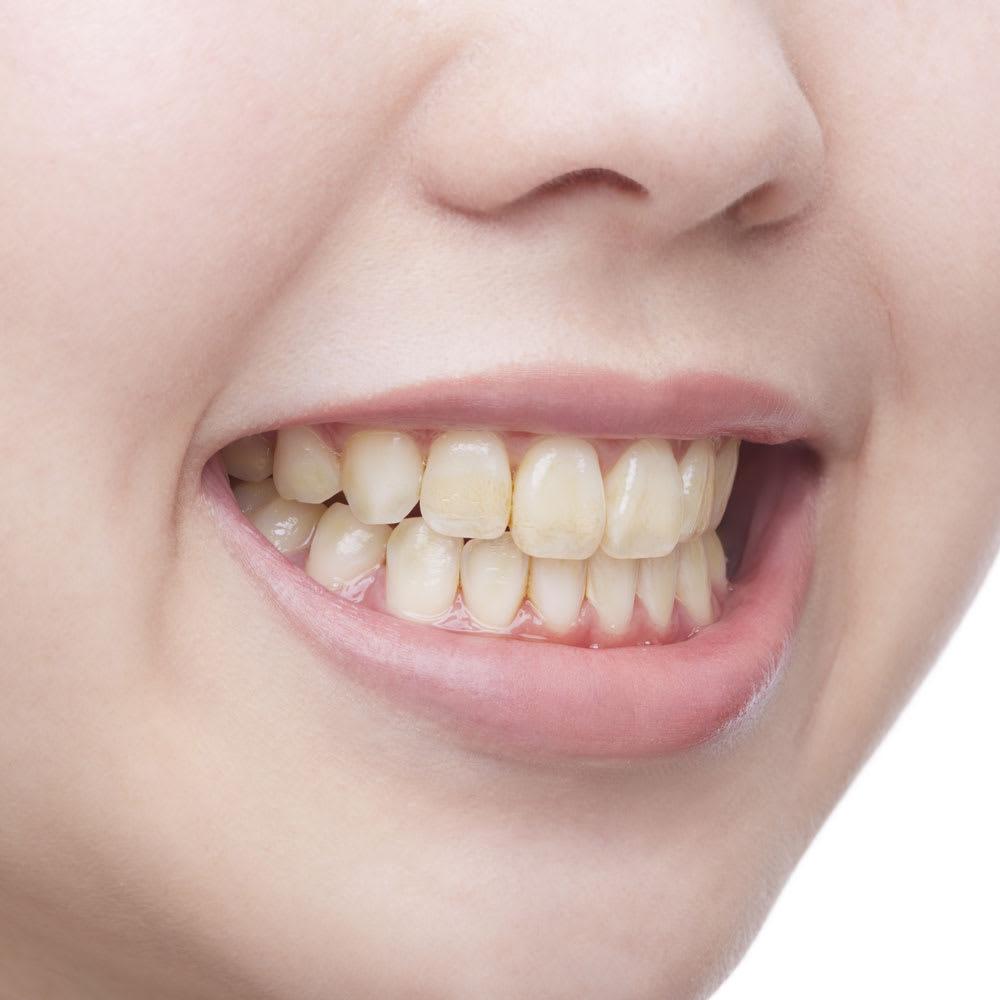 薬用ホワイトニング デンタクリーン (60g) 2個セット 使用前 黄ばんでツヤのない歯