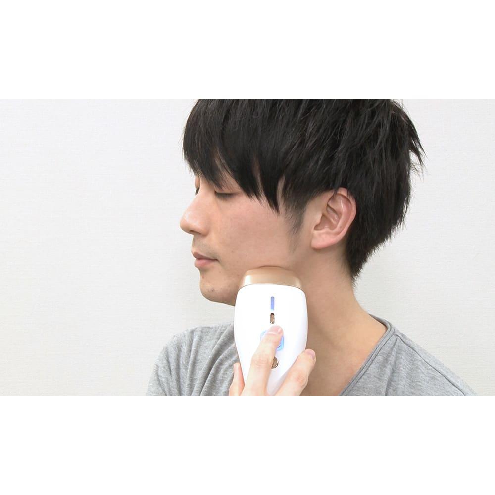 ダブルエピ スキンボーテ ※顔は剛毛スポットカートリッジ装着時のみ使用可能。使えるのは頬より下のみ。眼球、まぶた、目の周りには使用しないでください。