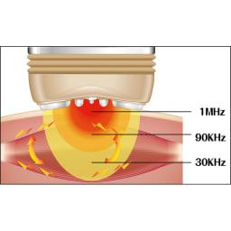 ZOGANKIN(ゾーガンキン) ハイパー 本体セット 3つの高周波による造顔筋エクササイズ