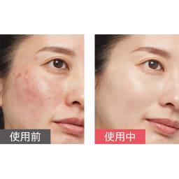 ミネラルカバー 薬用美白ファンデセラム 30g 自然にカバーし、使い続けるうちに肌が明るく!