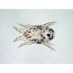 アミロン ダニバリア コナヒョウヒダニ(×100)