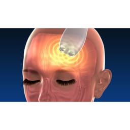 シェイプビート7 Body&Face 〇使用例:額から髪の生え際※イメージ おでこの筋肉って意外かもしれませんが、使うとかなりのすっきり感。つながっている頭皮下の筋肉まで同時に刺激。普段あまり刺激されてなかったことを実感できます
