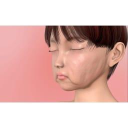 ミーゼ ウェーブスパ 顔の筋肉は年齢と共に衰えることで、皮膚が支えられず、たるんとした印象に。 ※イメージ