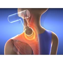 プラチナボディトリガー 【僧帽筋】自分ではケアしづらい大きい筋肉や、奥の筋肉までしっかり振動が届きます。